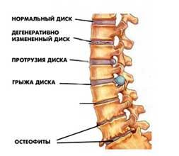 5 принципов лечения остеохондроза